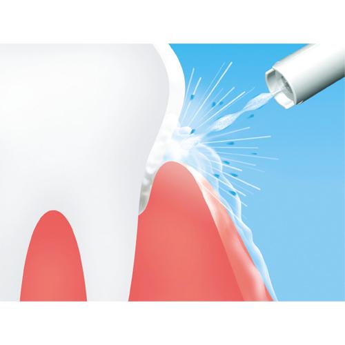 微細な気泡と水流をミックスしたやわらかい水流だからデリケートな歯周ポケットがダイレクトに狙えます